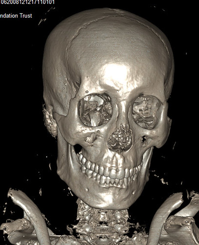 3D scan of the Graeco Roman mummy's skull (Photo Birmingham Museum)